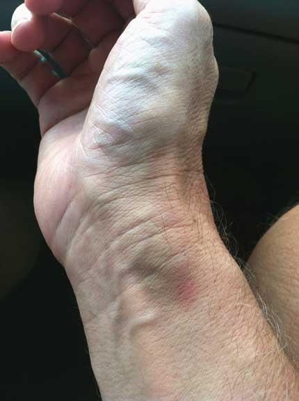 Bone cancer bruising