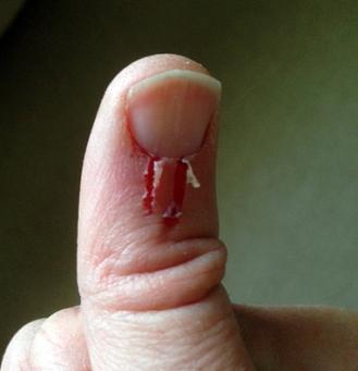 thumb2